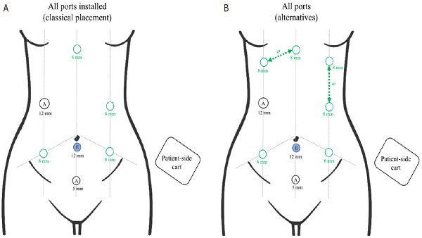 <a href='http://parjournal.net/article/view/1365' target='_blank'> Current role in facial allograft transplantation: what have we learned?</a>